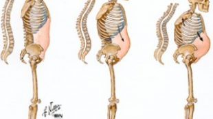 Kemik Erimesi ( Osteoporoz )