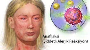 Anafilaksi Şoku