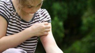 Böcek ısırığı için doğal çözümler