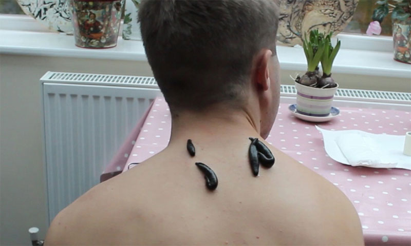 Maraş sülük tedavisi